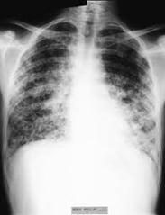 lung1.jpeg